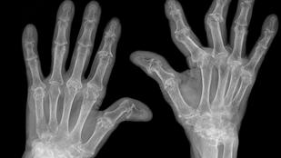 X-ray of hands with rheumatoid arthritis