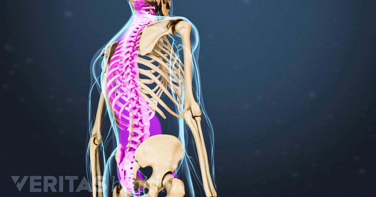 Back Flexion Definition | Back Pain and Neck Pain Medical Glossary