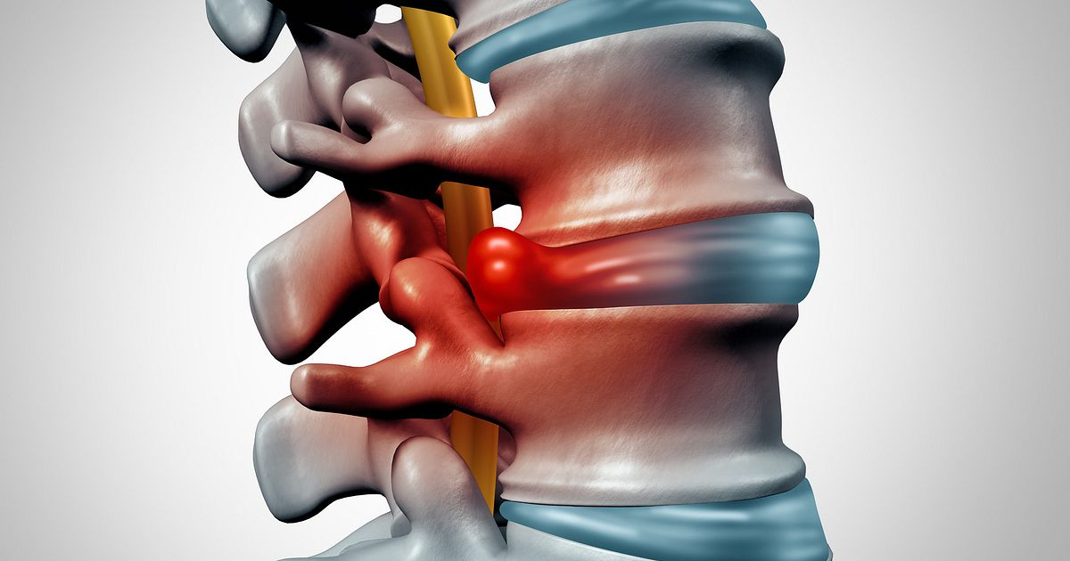 Can Herniated Discs Heal On Their Own