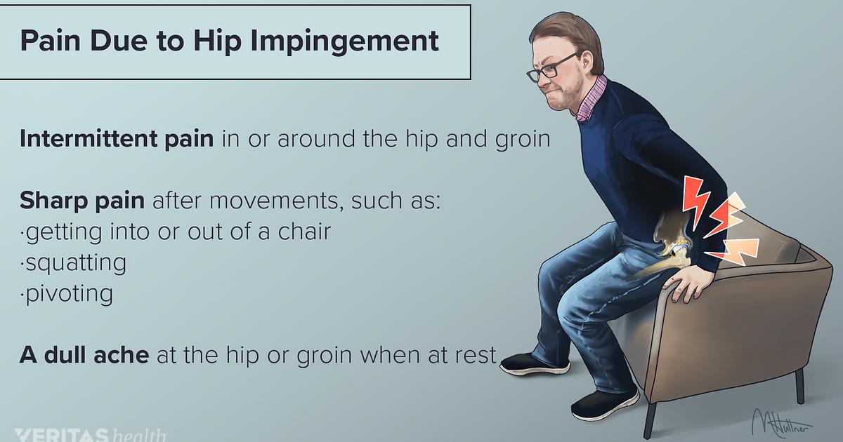 Hip Impingement Symptoms