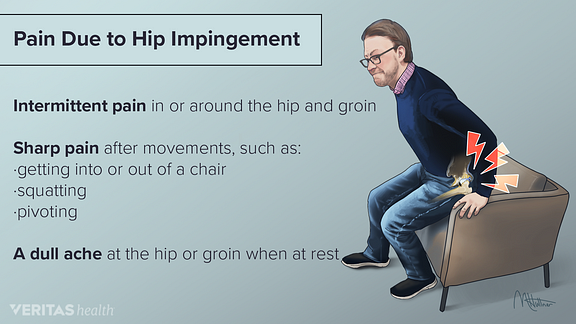 Hip impingement pain symptoms including intermittent pain, sharp pain and a dull ache.