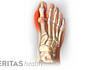 Pain in big toe joint