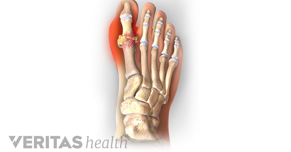 All About Gout Symptoms Diagnosis Treatment