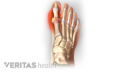 Illustration of the foot showing pain around the big toe as a result of gout