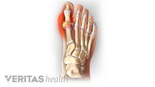 Pain in big toe joint caused by gout.