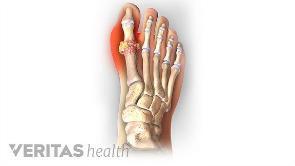 Illustration showing pain caused by gout in the big toe