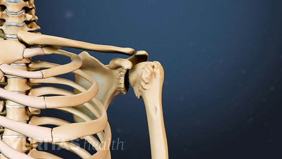 Shoulder ArthritisMedical illustration showing goats bear osteophytes in the shoulder joint