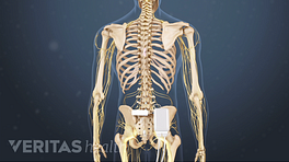 Medical illustration of a skeleton, showing the placement of a spinal cord stimulator for the lower back