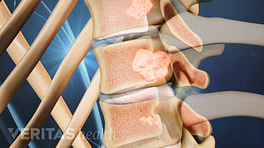 Profile view of spinal tumor in the vertebrae.