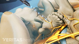 Radiofrequency Neurotomy electrical current into the lumbar spine.