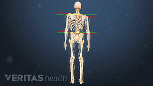 image of spine with degenerative scoliosis curve
