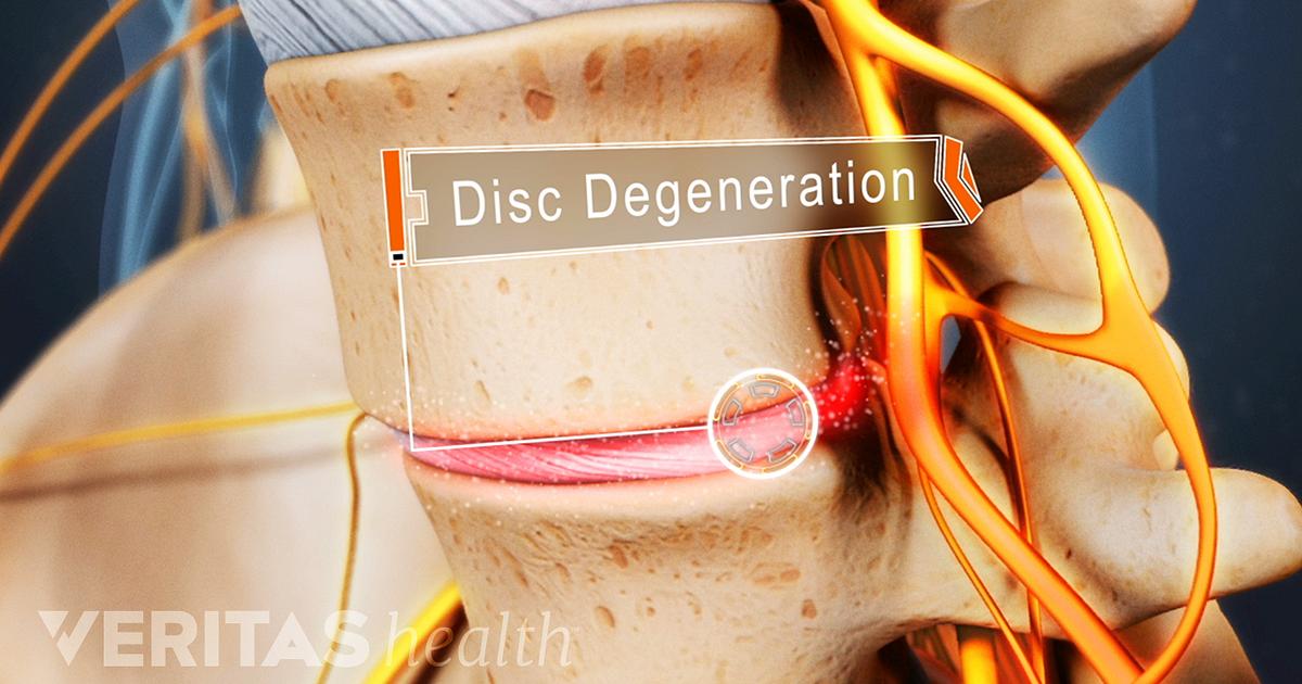 What Is Degenerative Disc Disease