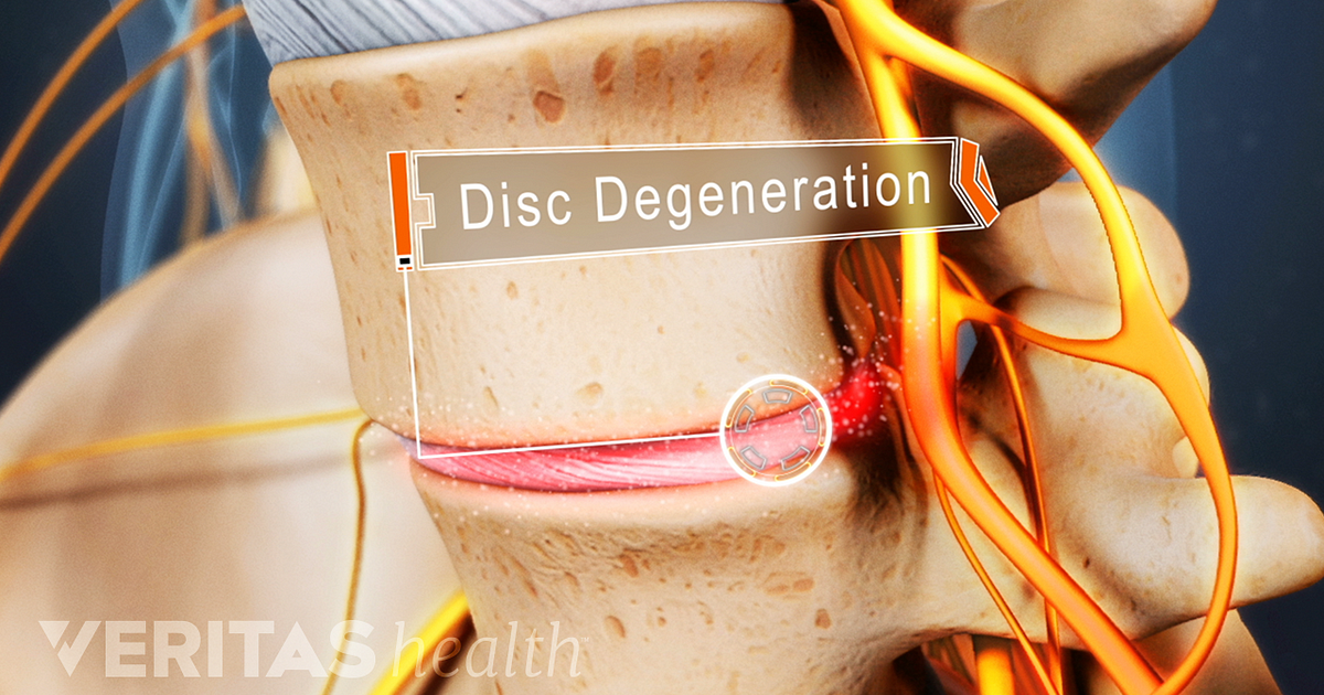 Lumbar Degenerative Disc Disease Overview Causes And