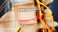 What Is Degenerative Disc Disease?