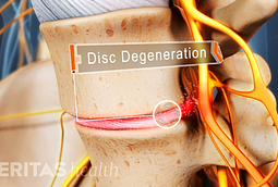 Lumbar Disc Degeneration