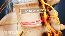 Disc degeneration in the lumbar spine