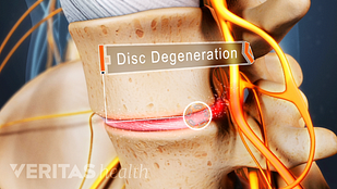 Illustration of a lumbar degenerated disc with a label that says