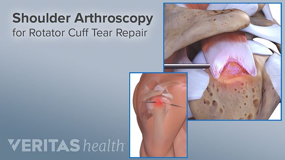 Shoulder arthroscopy for rotator cuff tear repair.