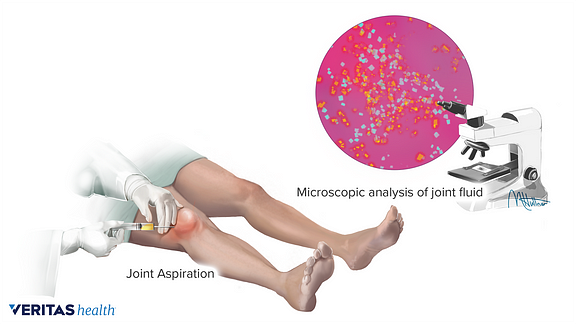 Medical illustration of a knee aspirations and fluid being examined under a microscope