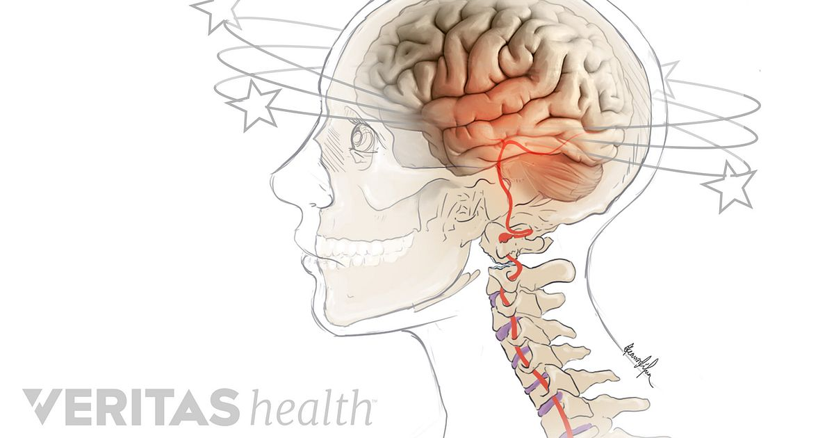 Can Neck Pain Cause Dizziness