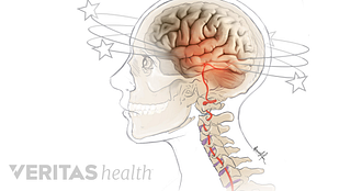 Illustration of a problem in the neck leading to dizziness