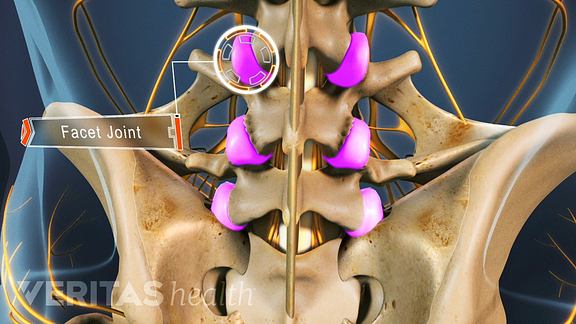 Medical illustration of a spine with the facet joints highlighted