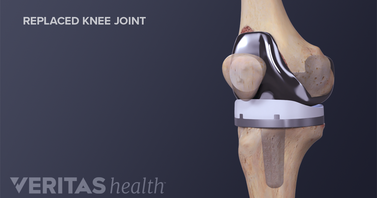 Facts About Outpatient Knee Replacement