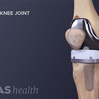 Anterior view of a replaced knee joint.