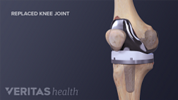 Medical illustration of a completed knee replacement