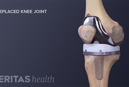 Illustration of the anatomy of a replaced knee joint