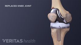 Medical illustration of a completed knee replacement surgery