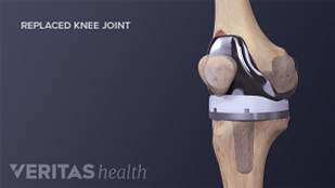 Medical illustration of replaced knee joint