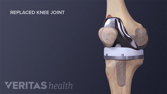 Hip, Knee & Shoulder Revisions