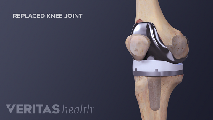 What to Expect After Knee Replacement