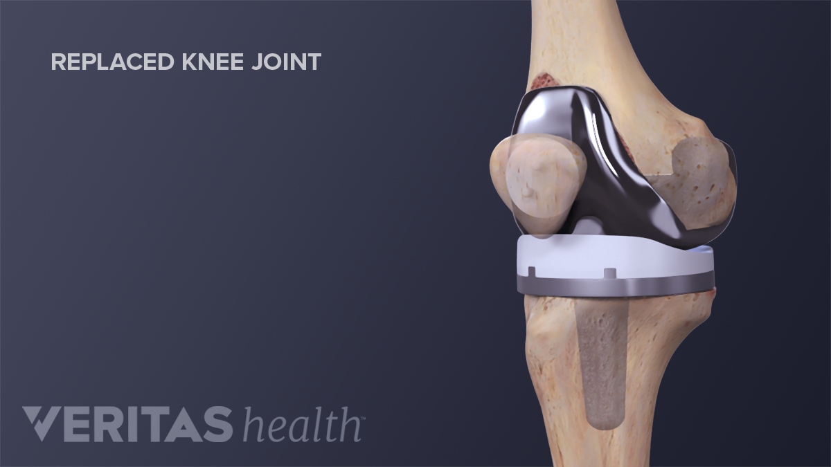 Medical illustration of a replaced knee joint