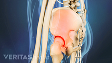 Profile view of SI joint pain in the pelvis.