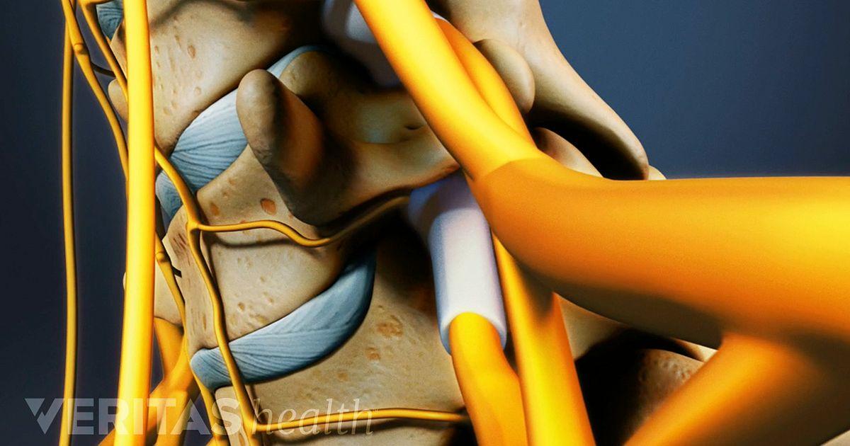 cervical retrolisthesis surgery