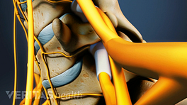 Profile view of cervical discs with healthy discs and nerves.