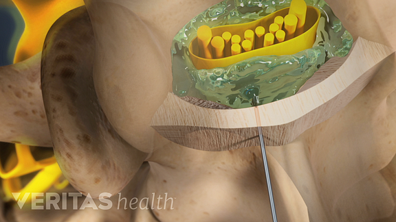 Animated video still of epidural steroid injection injected into the nerve root