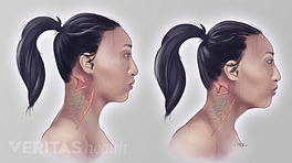 Illustration of the effect of forward head posture on the neck muscles
